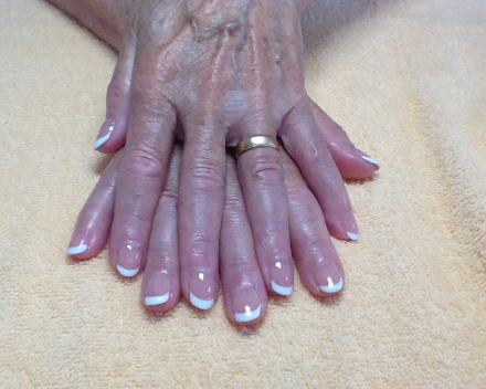 French Gelish (foto I.Verschuere)